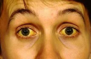 Симптомы болезни печени, причины возникновения, лечение