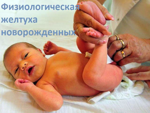 Особенности развития физиологической желтухи у новорожденного ребенка