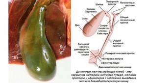 Дискинезия желчевыводящих путей у детей: симптомы и лечение патологии