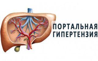 Портальная гипертензия: причины, симптомы, лечение