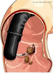 Все о процедуре удаления камней из желчного пузыря