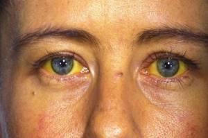 Симптомы гепатита С у мужчин: первые проявления и острая форма