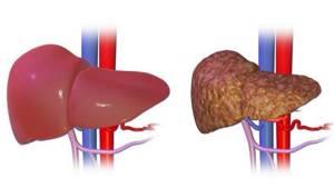 Гепаторенальный синдром – недуг печени с нарушением клубочковой фильтрации