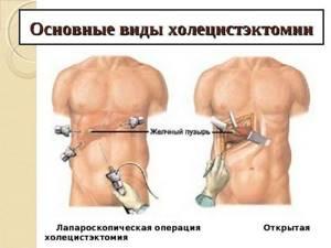 Как составляется диета после хирургического удаления желчного пузыря?