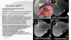 МРТ печени: особенности, преимущества, техника проведения
