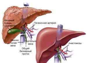 Проблемы с печенью: симптомы и особенности определения патологического процесса