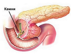 Виды дисфункции сфинктера Одди и способы устранения патологии