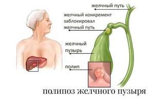 Где находится желчный пузырь: основные функции и заболевания органа