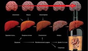 Печеночная энцефалопатия: стадии протекания и особенности лечения патологии