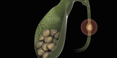 Причины образования камней в желчном пузыре: что нужно знать о лечении