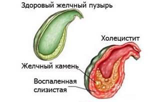 Практические сведения о холецистите: описание симптомов и причин