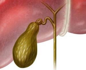Отключенный желчный пузырь: диагностика, лечение, профилактика
