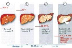 Показывает ли УЗИ печени гепатит, и как проходит обследование