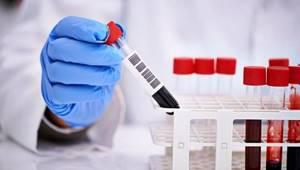 Инкубационный период гепатита c: как проходит и сколько по времени