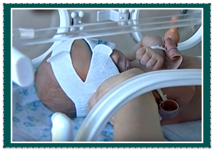Желтуха у новорожденных: причины и способы лечения