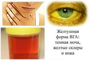 Какой гепатит сопровождается желтухой: особенности патологии