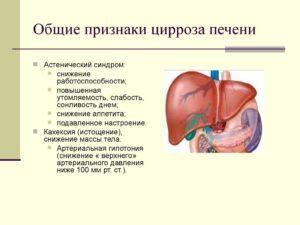 Цирроз печени: симптомы у женщин, лечение, профилактика