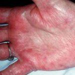 Печеночные ладони – симметричное аномально красное состояние кистей
