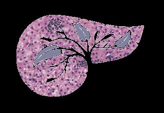 Гемангиома печени: симптомы заболевания и причины