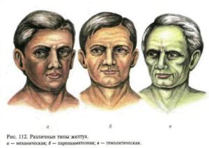 Гемолитическая желтуха: причины, признаки и способы лечения