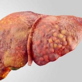 Жировой гепатоз печени: симптомы, диагностика и лечение