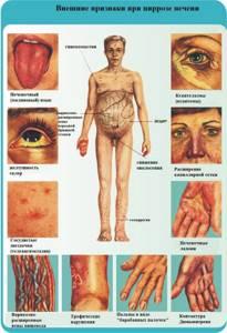 Цирроз печени у мужчин: симптомы начальной и прогрессирующей стадии