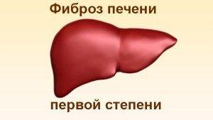 Воспаление печени: симптомы, классификация, диагностика