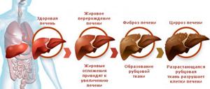 Диффузные изменения печени и поджелудочной железы: что это такое, симптомы