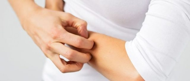 Печеночные пятна как результат патологий печени
