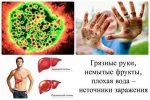Вирусный гепатит А: механизм передачи, симптомы, лечение