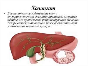 Холангит – это инфекционное поражение желчевыводящих каналов