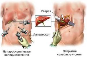 Камни в желчном пузыре: симптомы и лечение без проведения операции