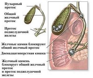 Желчная колика: причины, симптомы, лечение
