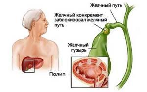 Полипы в желчном пузыре: что это, симптомы и основные причины заболевания