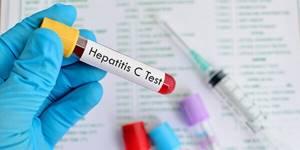 Гепатит c и антитела к нему: особенности анализов