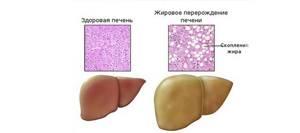 Фибросканирование печени: в чем отличие от биопсии